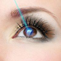 LASIK per correggere la vista
